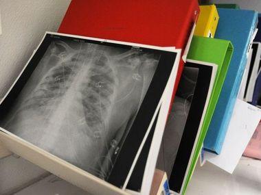 В Японії провели першу у світі трансплантацію частини легенів від живих донорів