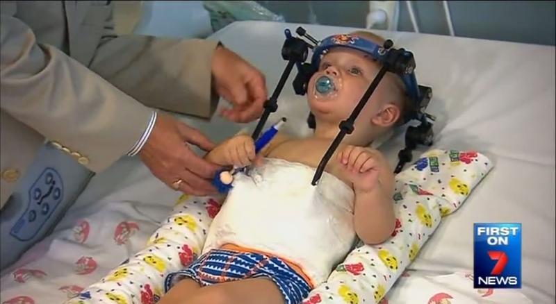 Медики провели унікальну операцію і врятували дитину
