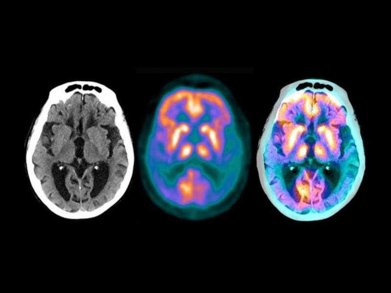 Американські вчені анонсували успіхи ліків від хвороби Альцгеймера, що проходять випробування