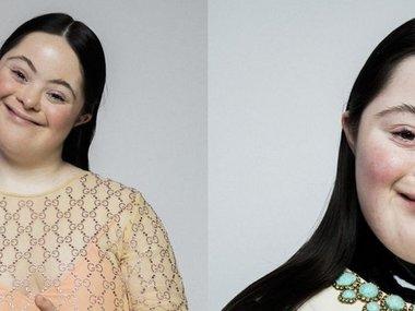 Модель з синдромом Дауна стала зіркою Gucci та Vogue